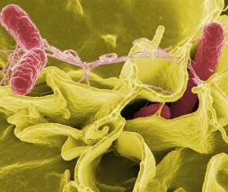 Resistencia bacteriana a los antibióticos